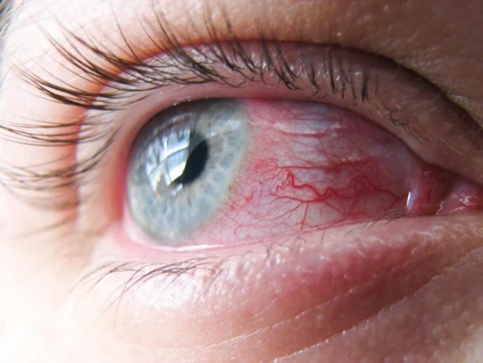 näköhermon tulehduksen tulehdus oireet